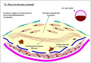 Figura 4.54. Atroesclerosis fases de crecimiento placa.4jpg